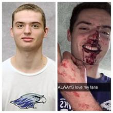 Will Schultz, a freshman at UW-Whitewater  accused of Assaulting a Woman